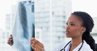 médica avaliando raio-x de paciente com pneumonia por covid-19