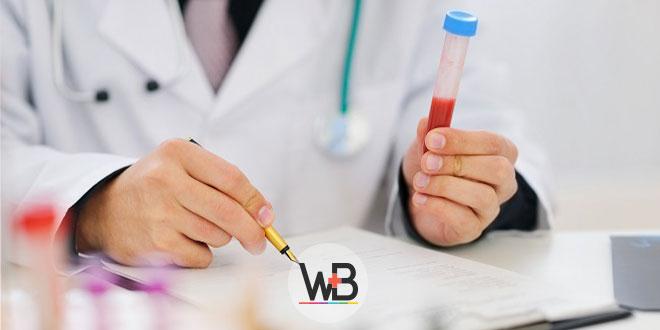 médico segurando amostra de sangue para exame laboratorial de síndrome do desconforto respiratório agudo