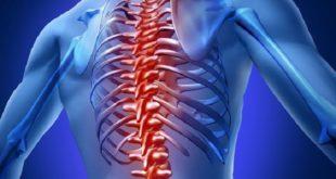 Representação gráfica de paciente com dor ciática persistente que talvez venha a passar por cirurgia.