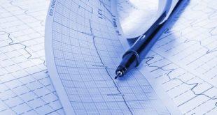 eletrocardiograma de paciente apresentado durante congresso ACC 2020