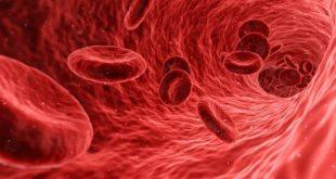 Representação gráfica da corrente sanguínea de um paciente com coronavírus e doença falciforme.