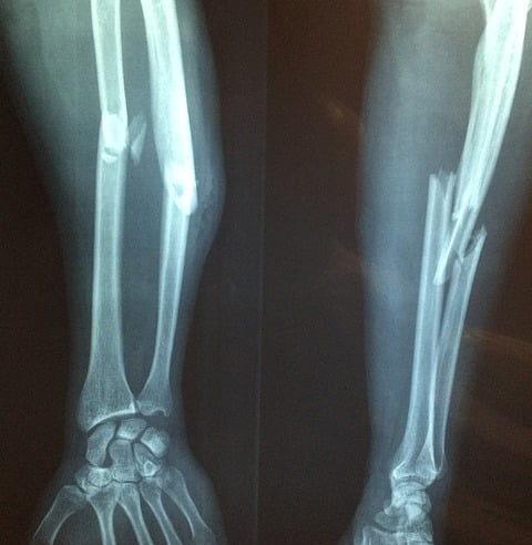 Raio-x de fratura de braço de paciente positivo para Covid-19