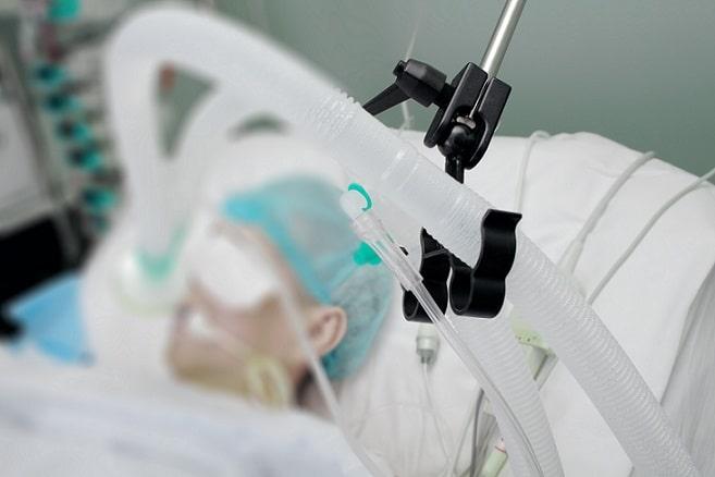 paciente com covid-19 internado em ventilação mecânica