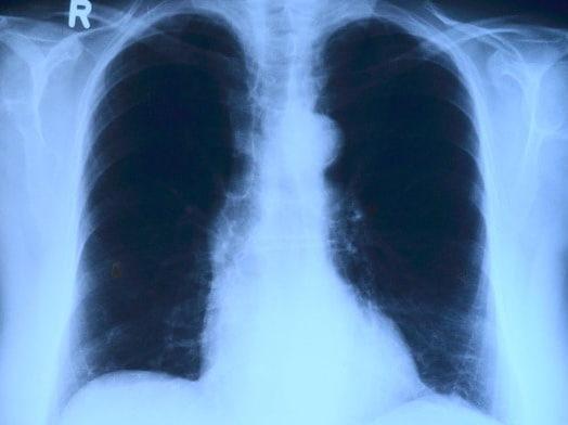 Aumento no caso de Síndromes Respiratórias pode indicar grande subnotificação em casos de Covid-19, segundo Fiocruz.