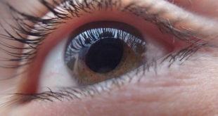 Olho tratado com antibioticoterapia após diagnóstico de conjuntivite.