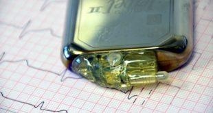 Implante cardíaco de paciente já falecido reutilizado em novo paciente após o processo de desinfecção.