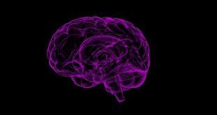 Representação gráfica do cérebro de um paciente com Alzheimer.
