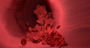 Representação grávida de tromboembollismo em paciente diagnosticado com Covid-19