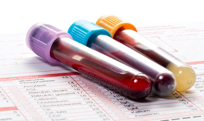 frascos de sangue com diagnóstico da covid-19