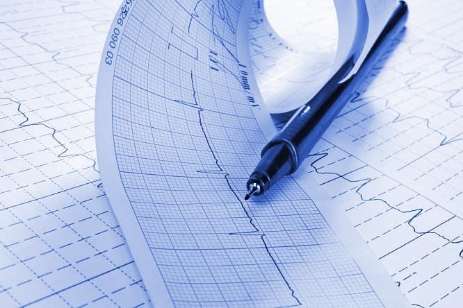 eletrocardiograma de paciente com extrassístoles ventriculares