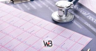 eletrocardiograma de paciente com covid-19