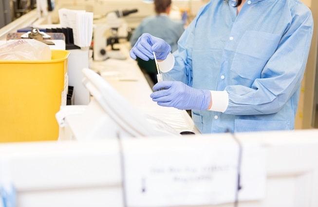 médico laboratorista avaliando amostra de escarro de paciente com HIV