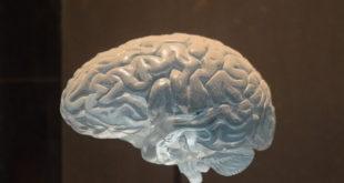 Modelo de representação de um cérebro humano capaz de sofrer tanto com câncer como de um AVC.