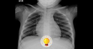 radiografia de tórax de paciente com neurofibromatose