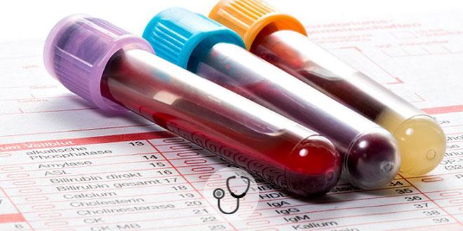 vidros de sangue de paciente com coronavírus