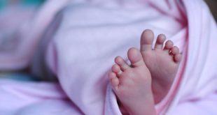 Bebê cuja mãe fez uso de fluconazol durante a gravidez é avaliado para malformações.