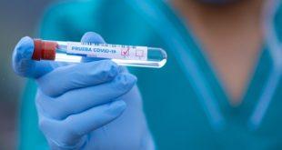 enfermeiro segurando frasco de teste de covid-19
