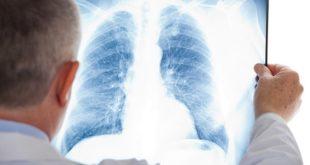 médico segurando raio x de tórax de paciente com pneumonia associada à ventilação mecânica