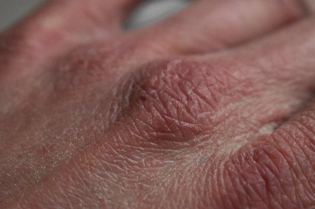 Doenças dermatológicas podem surgir devido a questões psicológicos durante a pandemia de Covid-19 devido ao isolamento social imposto