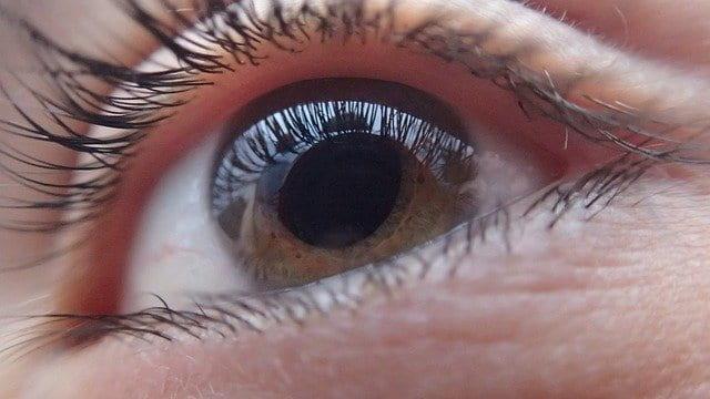 Olho humano com princípio de ceratocone, servindo de exemplo no mês de conscientização da doença, junho violeta