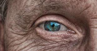 Paciente com degeneração macular relacionada à idade (DMRI) e usuário de aspirina participa de estudo buscando uma resposta para relação entre os dois.