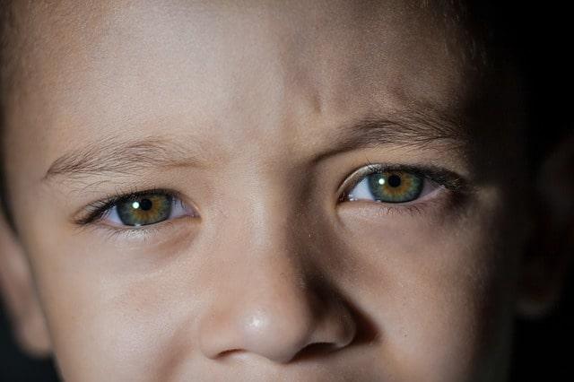 Bebê com Obstrução congênita do canal lacrimal