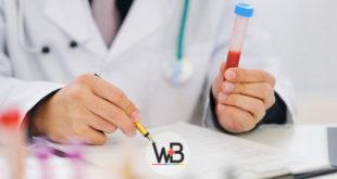 médico avaliando exame de sangue de vitamina D