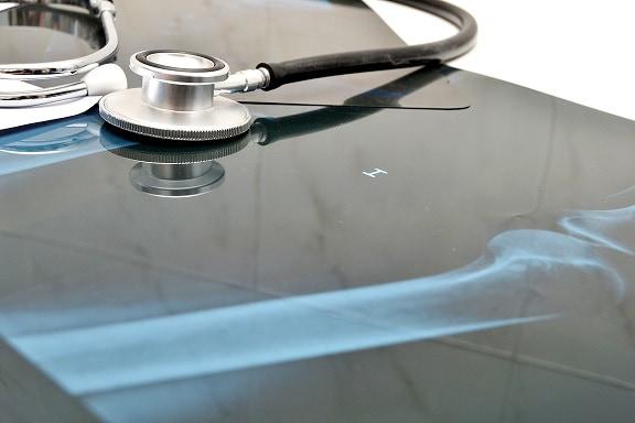 Mesa de consultório médico com exames de paciente que apresenta fraturas da região proximal do úmero
