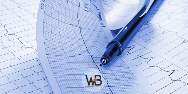 eletrocardiograma de paciente sobre tamponamento cardíaco