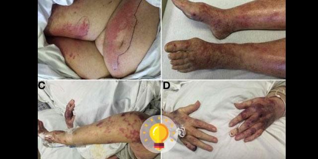 imagens de hepatites virais