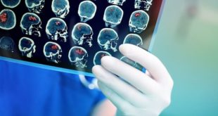 mão de médico avaliando ressonância magnética de complicações neurológicas da endocardite infecciosa