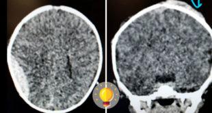tomografia de trauma pediátrico