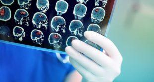 Médico analisa exame de paciente com tumor cerebral para decidir a melhor abordagem