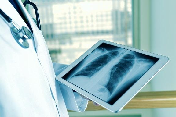 Médico olhando radiografia da plataforma RadVid-19