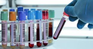 Tubos de sangue para pesquisa clínica na Covid-19