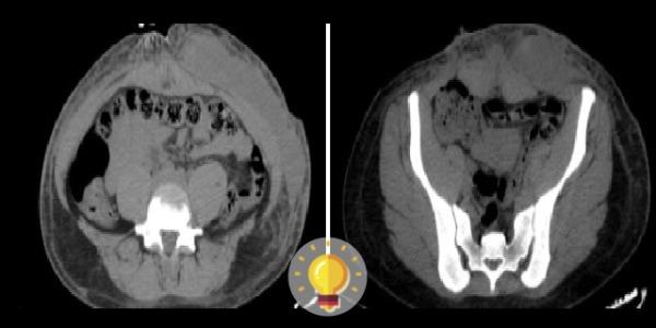 tomografia do abdome em paciente mulher