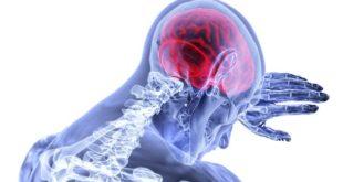 Representação gráfica do cérebro humano, que sofre com a cefaleia numular