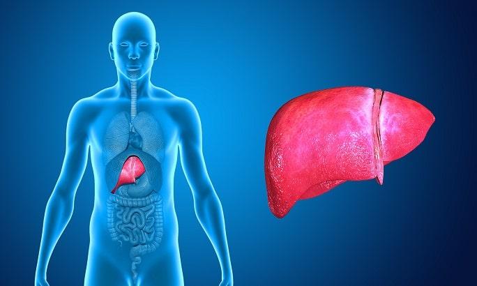 Representação gráfica de fígado de paciente com traumas hepáticos que passou por embolização hepática