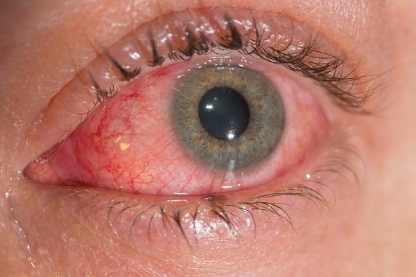 Paciente com síndrome oculoglandular de Parinaud