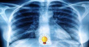 Radiografia de tórax de lactente apresentando taquipneia