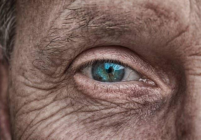 Olho de uma pessoa de idade que pode vir a desenvolver melanoma de corpo ciliar