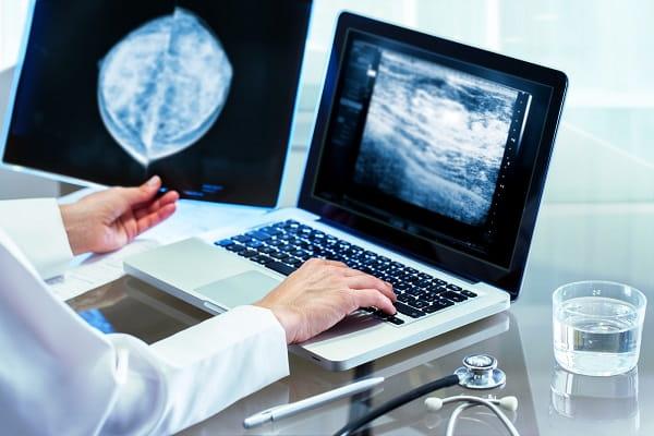 Médica analisa mamografia de paciente com mais de 40 anos para rastreio de câncer de mama