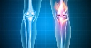 Paciente com osteoartrite de joelhos e quadril faz tratamento para bloqueio da interleucina 1-beta