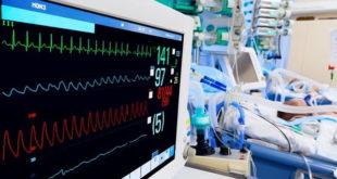 monitor cardíaco de paciente internada com síndrome inflamatória multissistêmica associada à covid-19