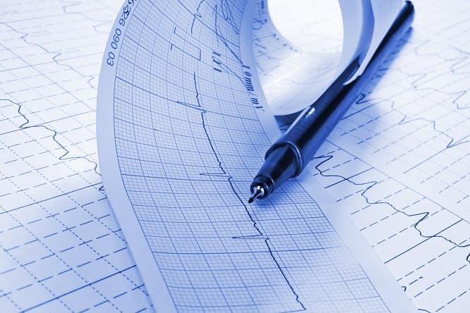 folhas de eletrocardiograma de paciente com fibrilação atrial