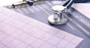 eletrocardiograma de paciente com risco de FA na prevenção de AVC, conforme apresentado no ESC 2020