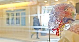 Representação de um cérebro humano que pode sofrer trombose venosa cerebral