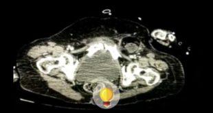 Tomografia de mulher com distensão abdominal
