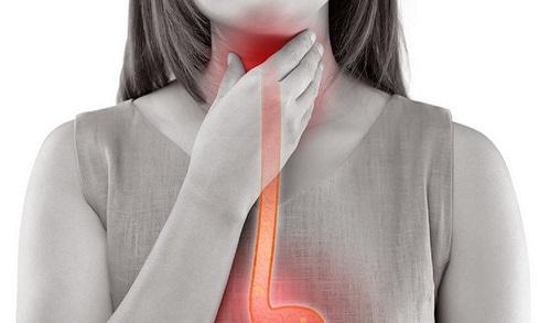 Representação gráfica de mulher sofrendo com esofagite eosinofílica