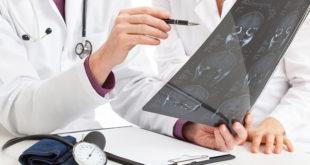 médico avaliando tomografia de paciente com hidrocefalia de pressão normal